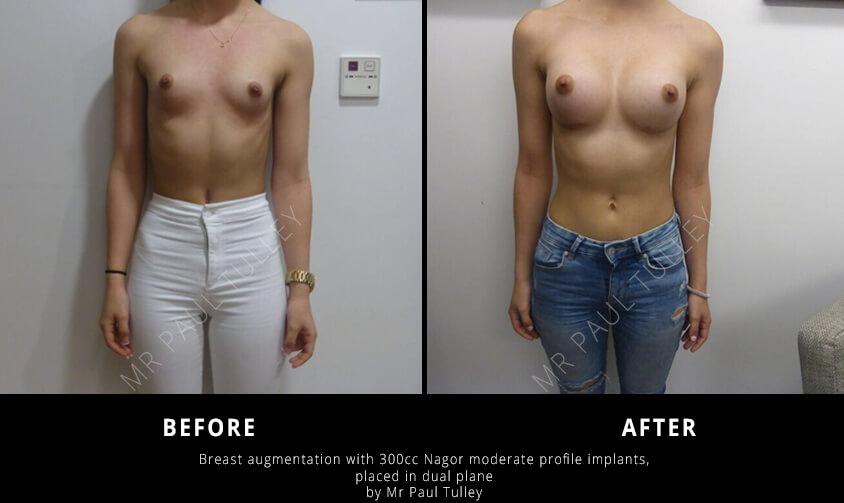 Breast Augmentation London