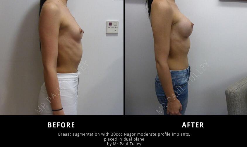 Breast Enhancement London