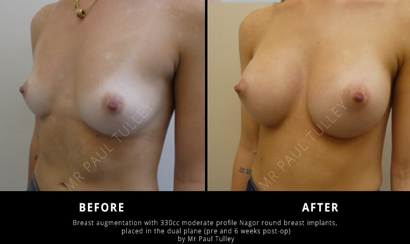 Round Breast Implants Results