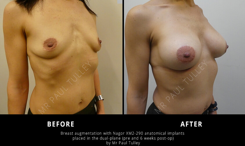 Anatomical Breast Implant Results
