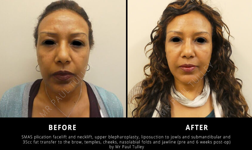 Facial Rejuvenation London