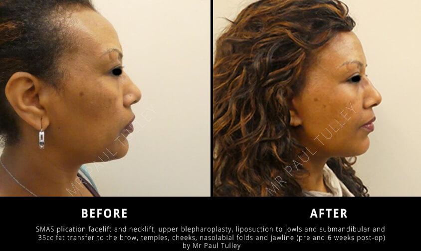 Facial Rejuvenation Surgeon London