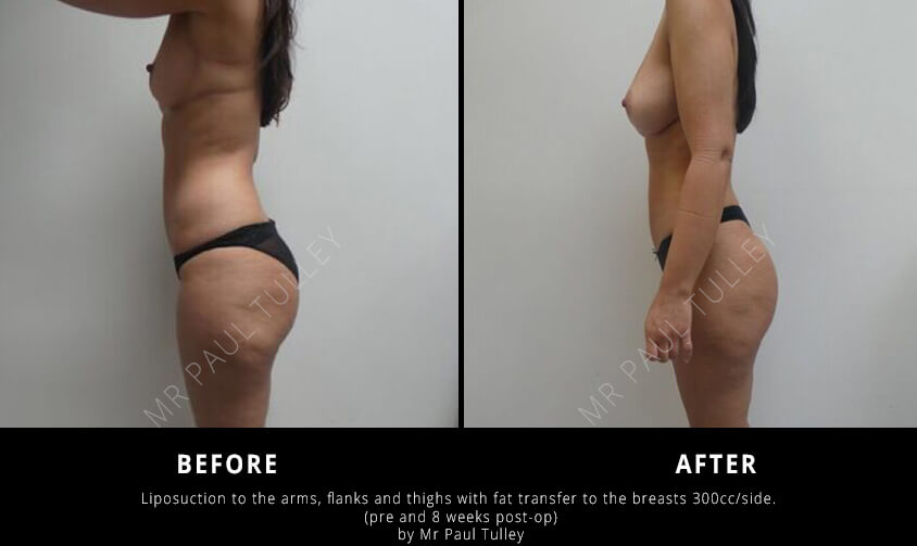 Liposculpting Results London