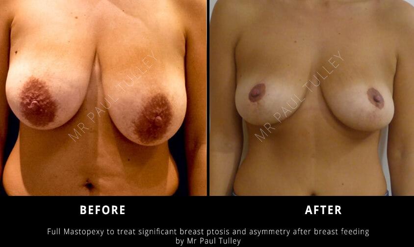 Breast Uplifting Surgery