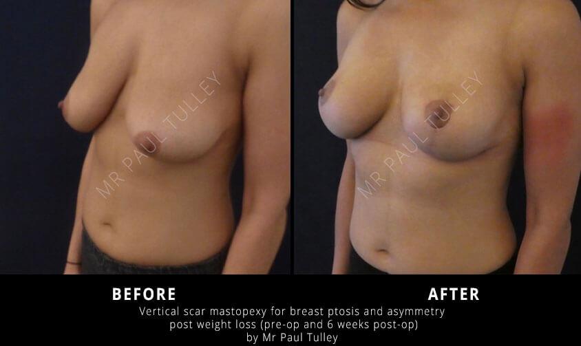 Breast Lift Surgeon London