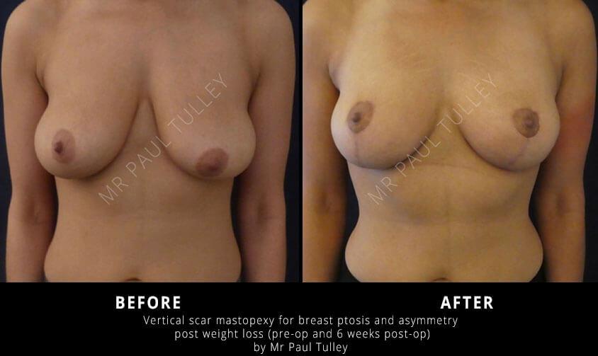 Breast Uplift Surgery London
