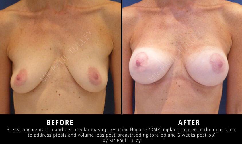 Breast Uplift After Breastfeeding