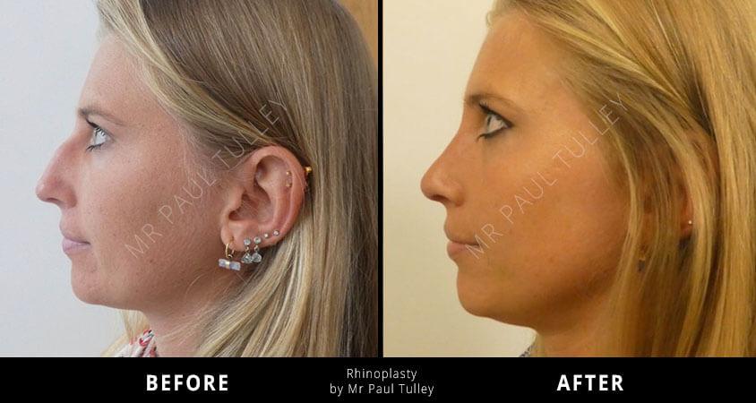 Nose Surgery London