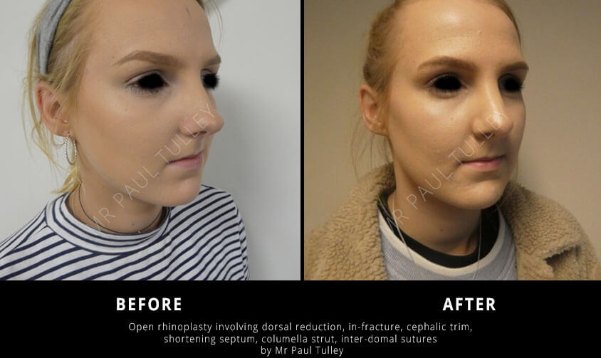 Nose Job Specialist London