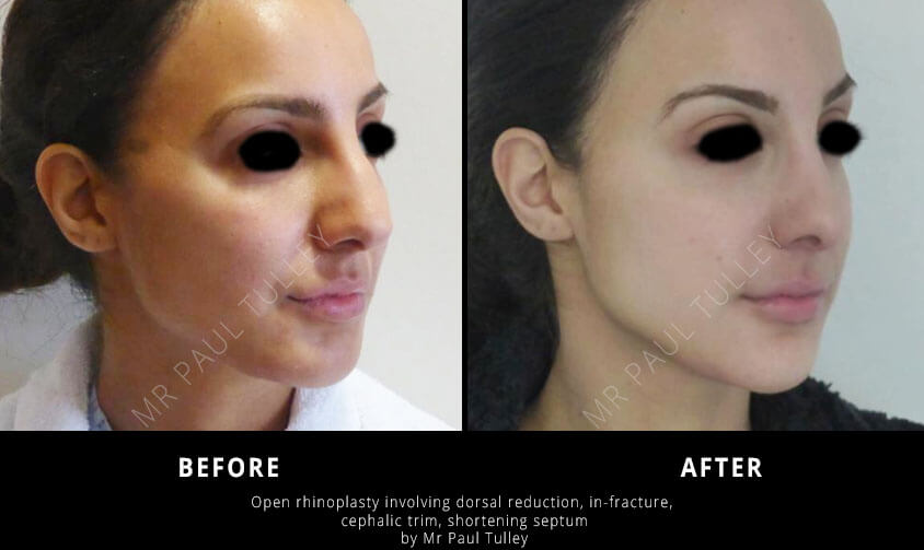 Nose Job Results London