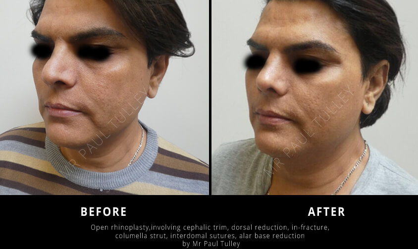 Male Cosmetic Surgery London