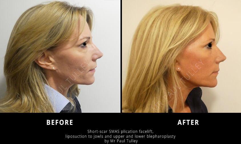 Short Scar Facelift Surgery London