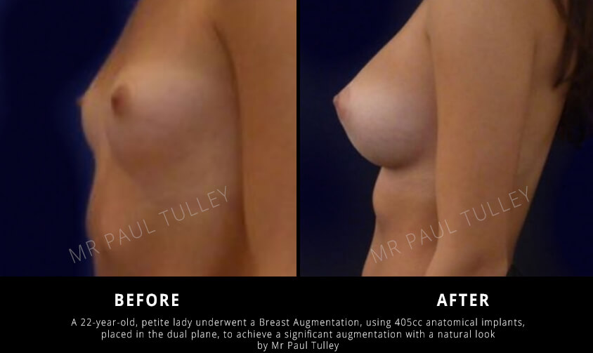 Breast Augmentation Results in Slim Woman