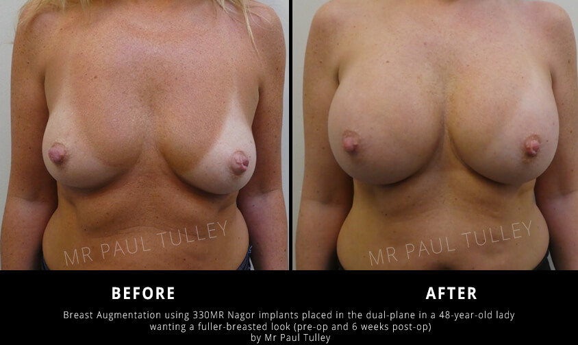 Breast Augmentation for Fuller Breast Results