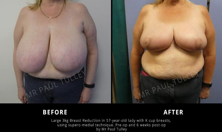 Massive Breast Reduction London