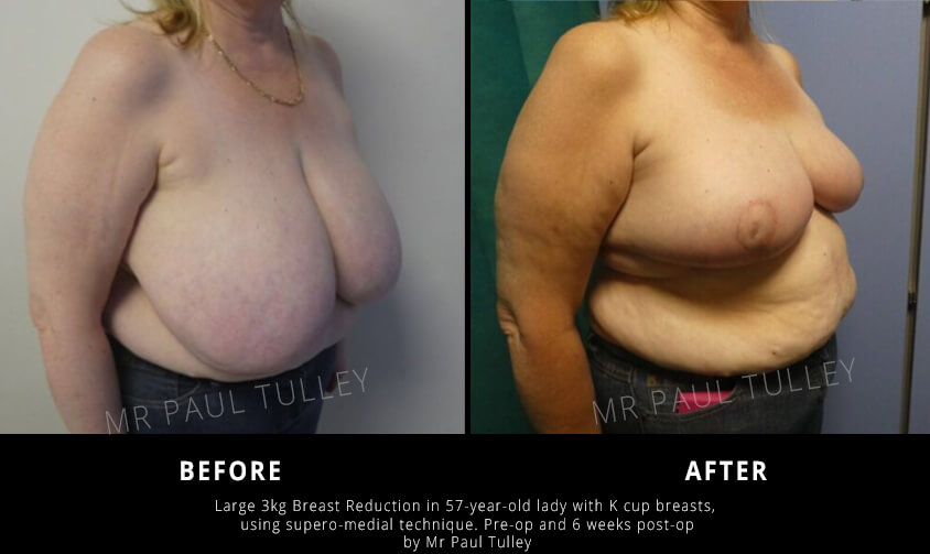 Breast Reduction of Very Large Breasts London