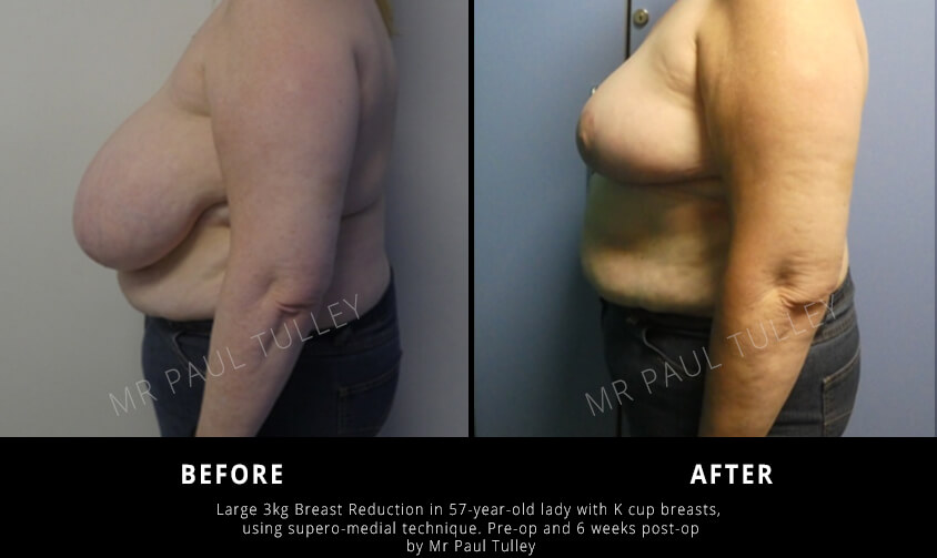Breast Reduction Before and Afters