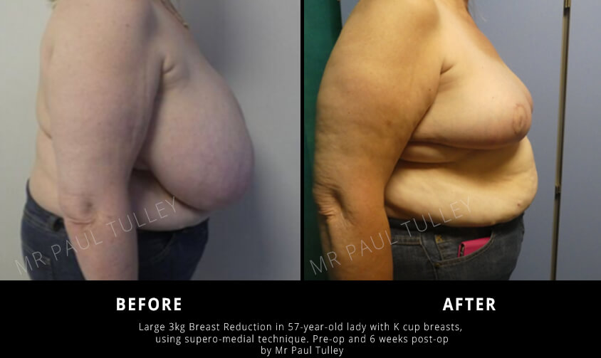 Breast Reduction Results for Overly Large Breasts