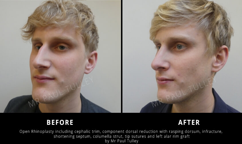 Male Nose Job Before and Afters