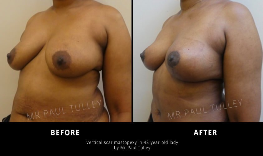 Breast Uplift Surgeon London