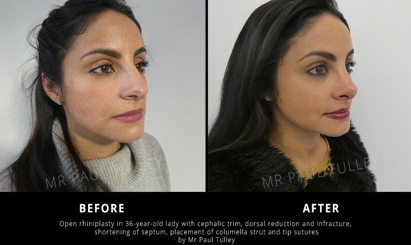 Dorsal Reduction Nose Job