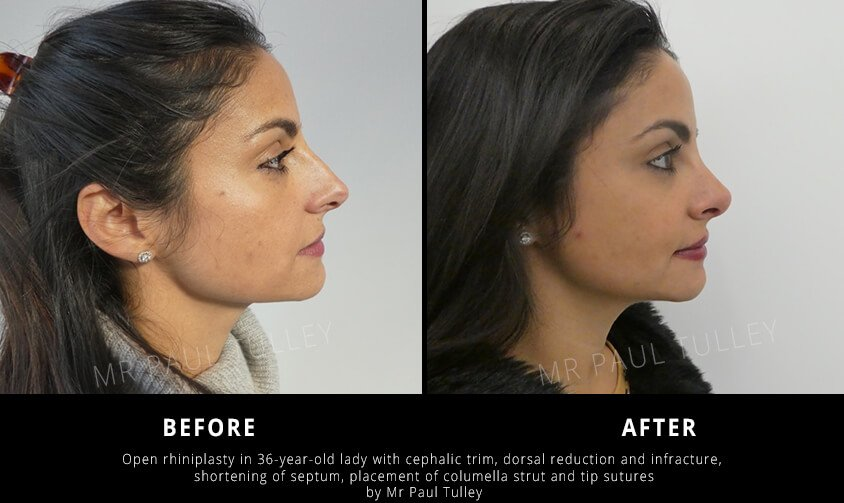 Nose Job with Dorsal Reduction