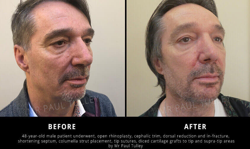 Male rhinoplasty before and afters