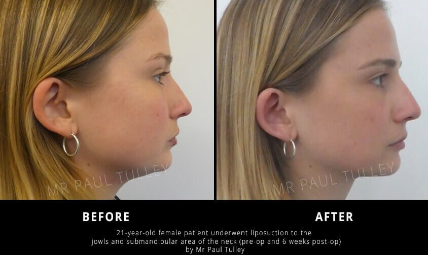Neck Liposuction Before and Afters
