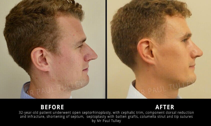 Septorhinoplasty Profile Before and After