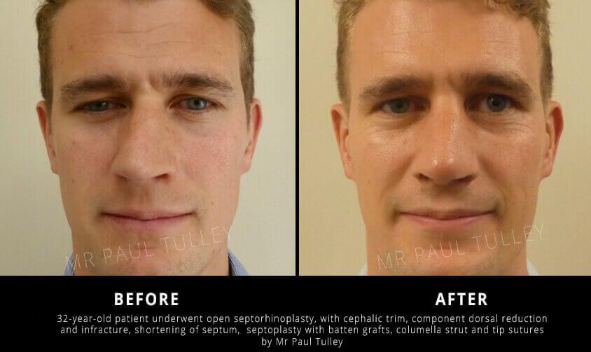 Septorhinoplasty Results