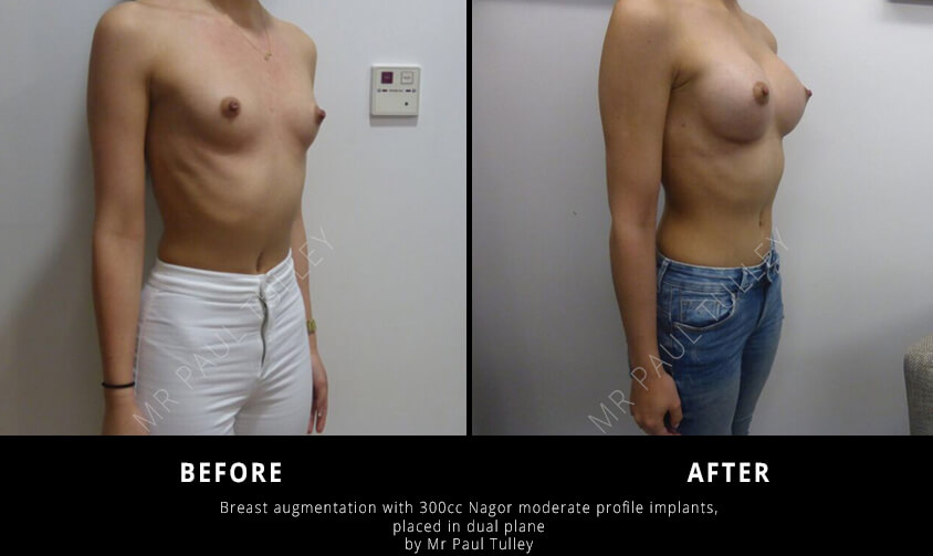Breast Augmentation Results London
