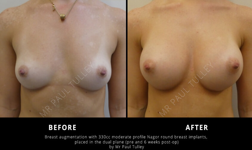 Breast Augmentation with Round Implants