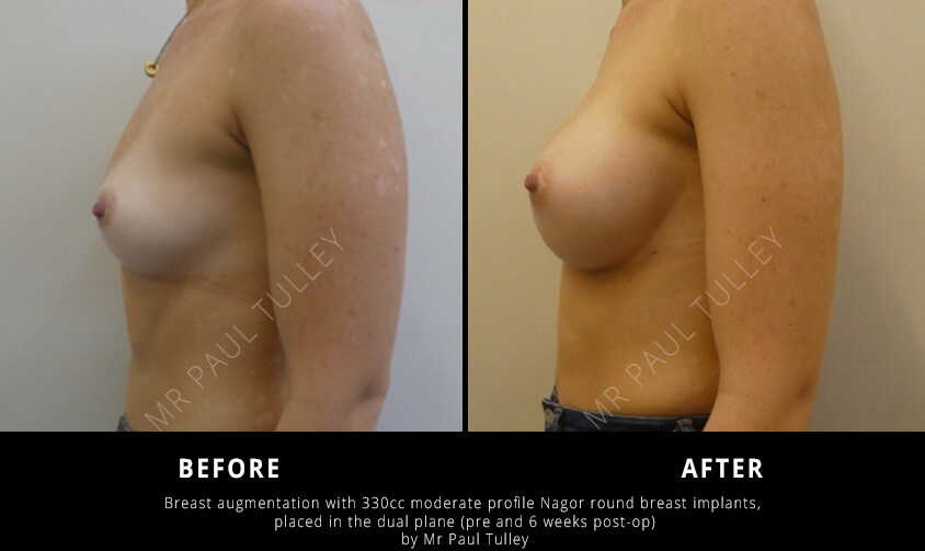 Round Breast Implants Before and Afters
