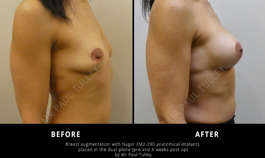 Anatomical Breast Implants Before and Afters