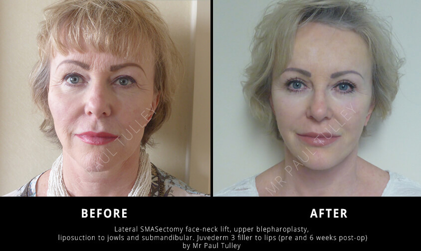 Facelift Before and Afters