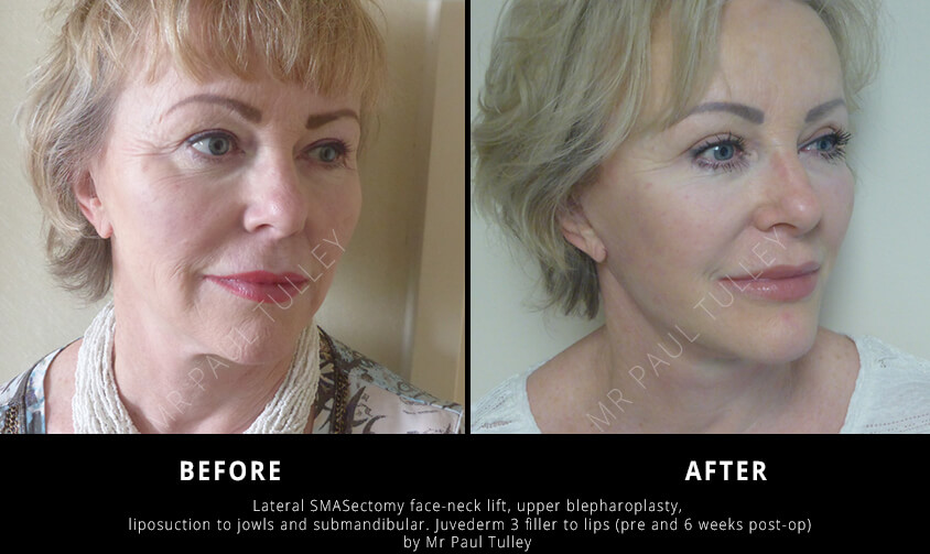 Facelift Results