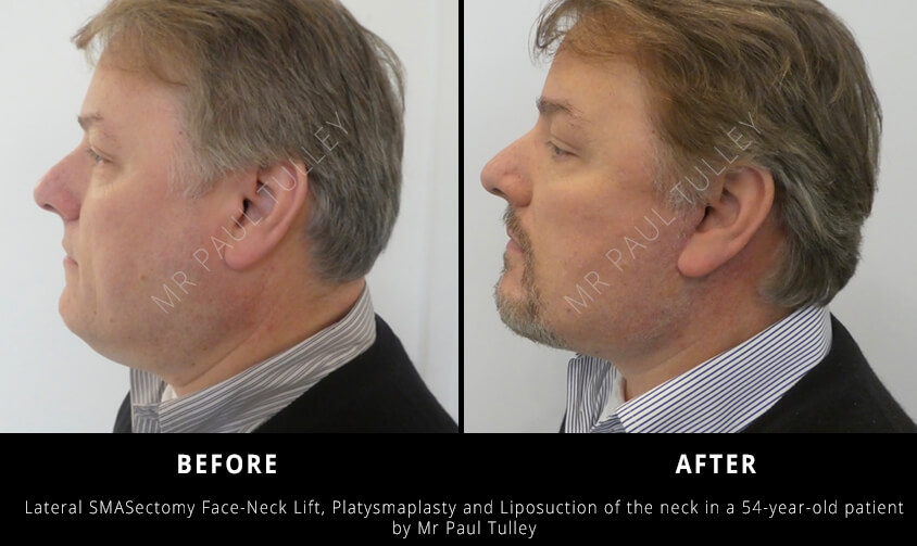 Facelift London Results