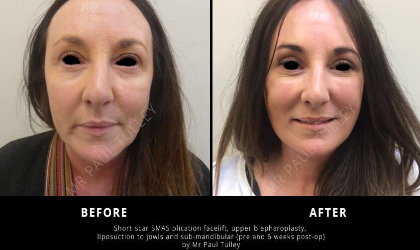Facelift Surgery London