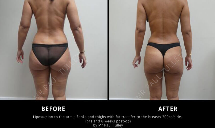 Liposuction Results London