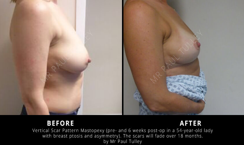 London Breast Uplift Results