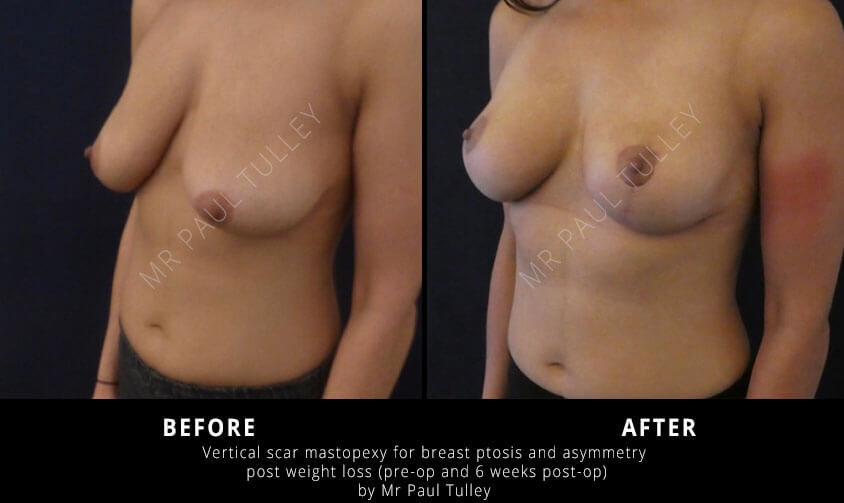 Breast Lift Surgeon London