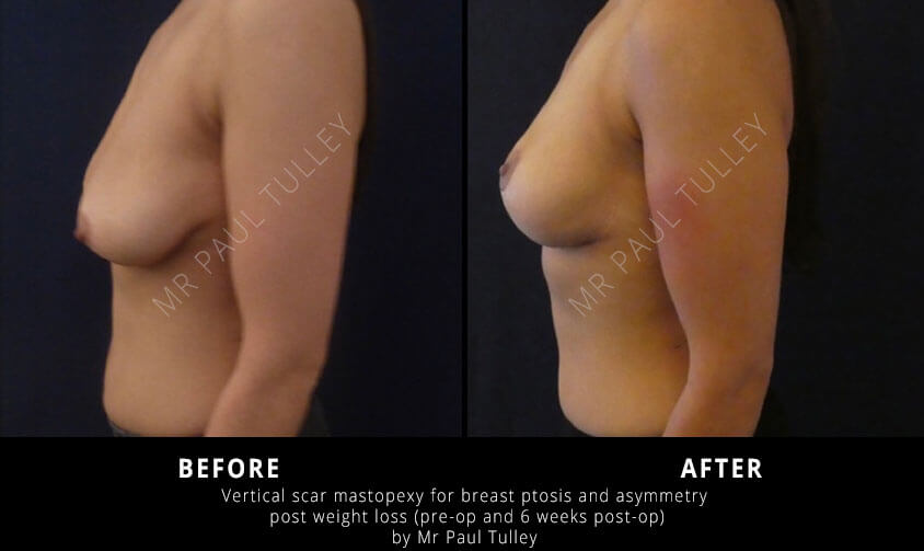 Breast Uplift Surgeon London