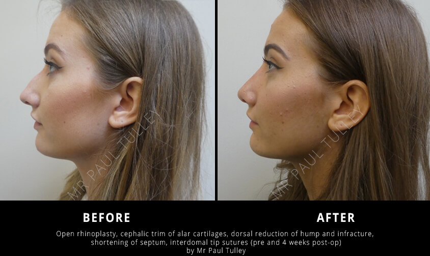 Nose Reshaping Surgeon London