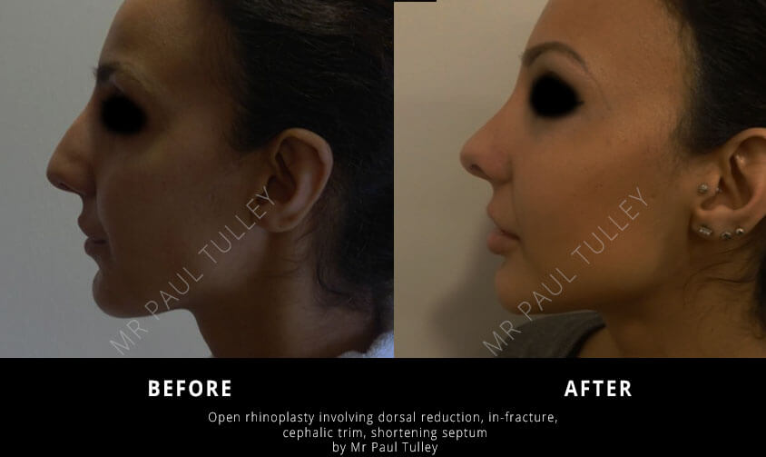 Rhinoplasty Four Years Post Op