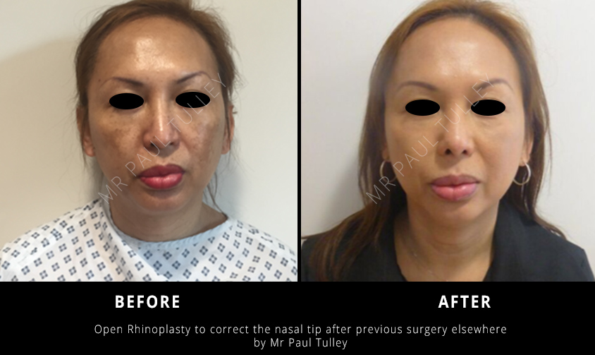 Rhinoplasty London Before and Afters