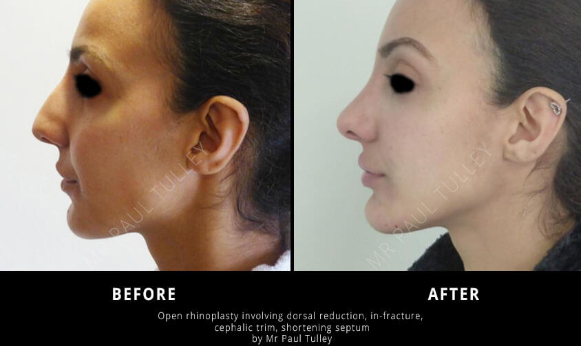 Rhinoplasty Surgery London