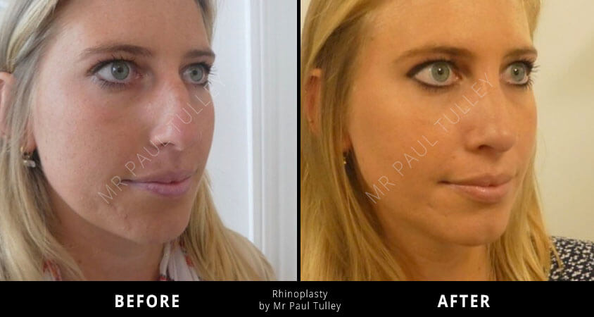 Rhinoplasty Testimonial London