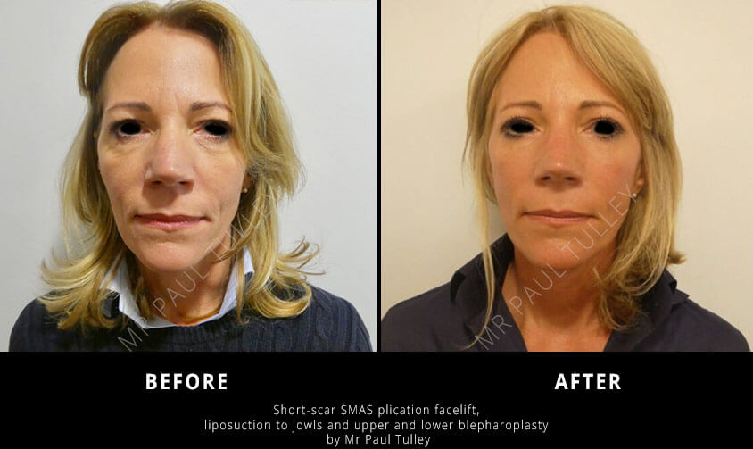 Short Scar Facelift London