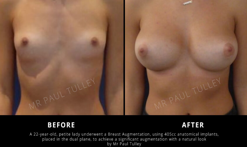 Breast Augmentation Results in Slimmer Woman
