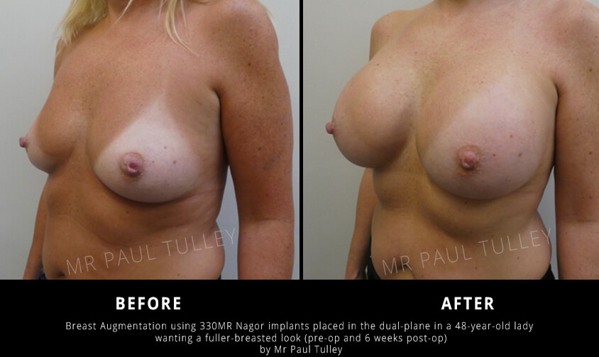 Breast Augmentation Before and Afters